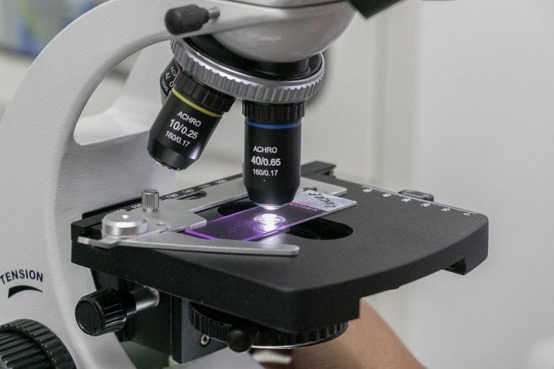 Neinvazívne biochemické vyšetrenia – vyšetrenia z krvi matky
