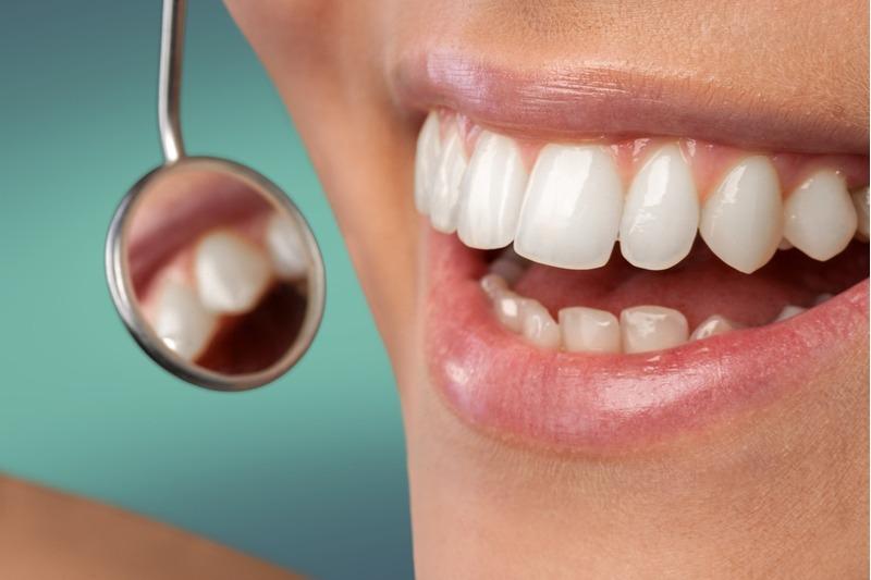 Preventívna prehliadka u zubára