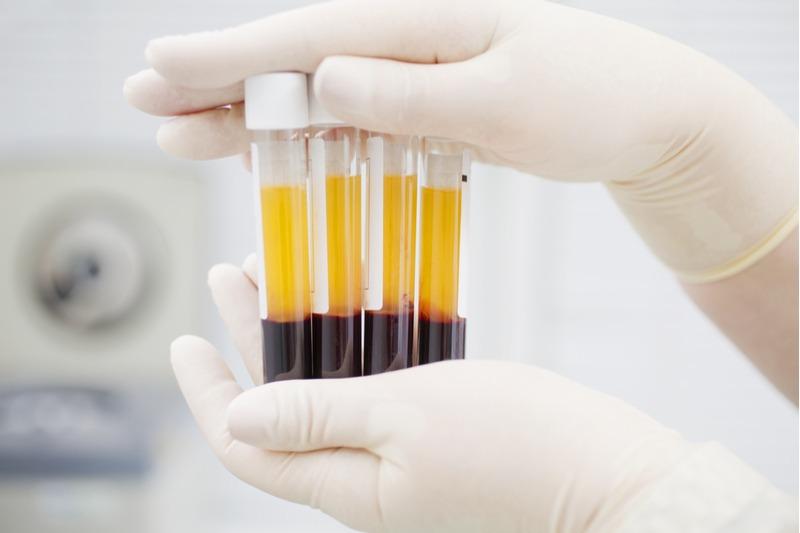 Liečba krvnou plazmou