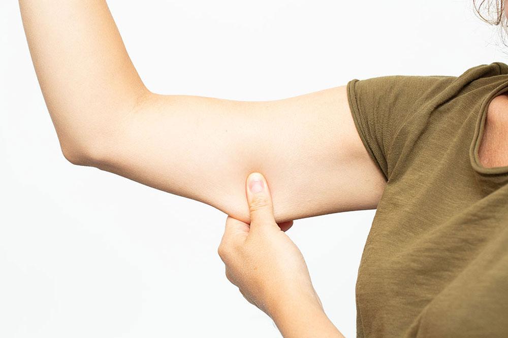 Lifting paží - brachioplastika